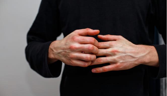 Rompiendo barreras para el paciente de psoriasis