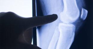¿Qué es y cómo combatir la artritis ósea?