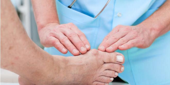 Juanetes: causas, síntomas y tratamientos