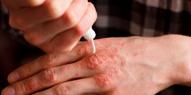 Condiciones que pueden mejorar los pacientes con artritis psoriásica