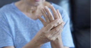¿Cómo aliviar la inflamación producida por la artritis reumatoide?