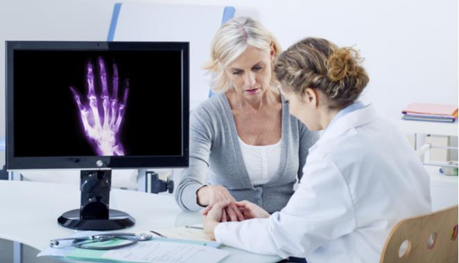 Si experimentas estos 5 signos puede tratarse de artrosis