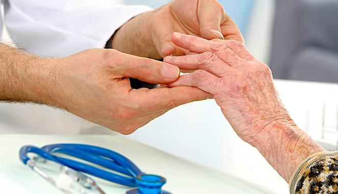 Complicaciones de la artritis reumatoide
