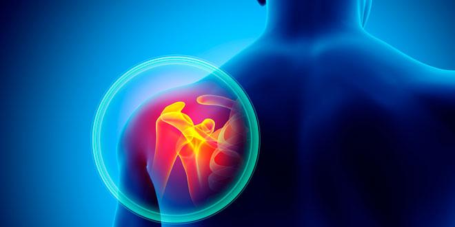 Si sientes estos 5 signos, puede tratarse de una artrosis
