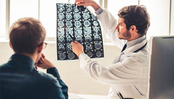 5 secuelas neurológicas que puede causar el lupus