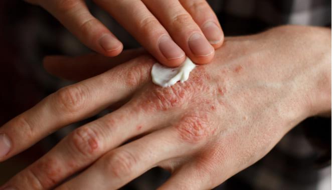 10 cosas que debes y no debes hacer si tiene psoriasis