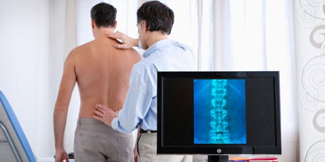 La espondilitis anquilosante, una enfermedad que va más allá del dolor de espalda
