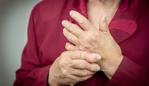 ¿Cómo prevenir la artritis reumatoide?