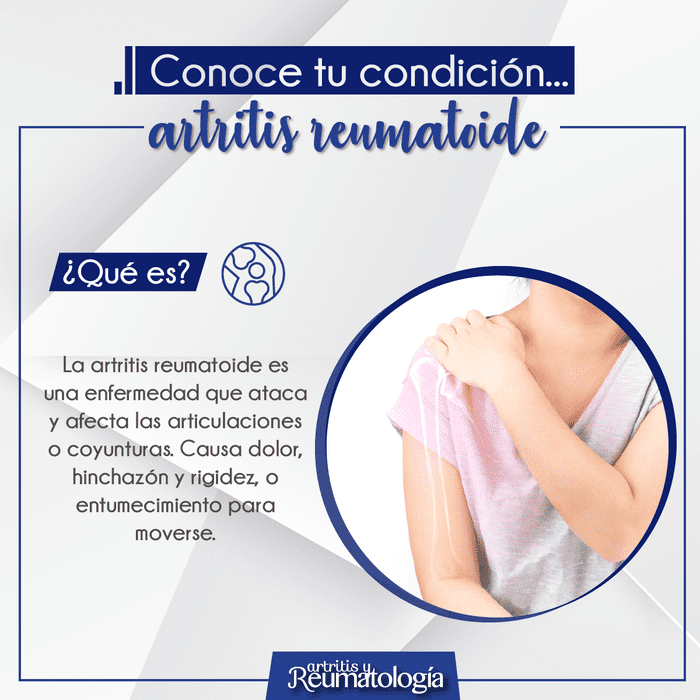 Que es la artritis reumatoide, conoce sobre esta condición