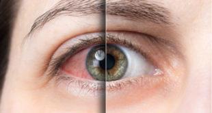 ¿Qué es el síndrome de Reiter?