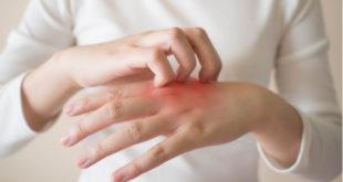 Psoriasis: progresan nuevos tratamientos eficaces