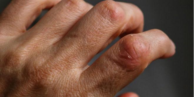 Dermatomiositis, causas y tratamiento