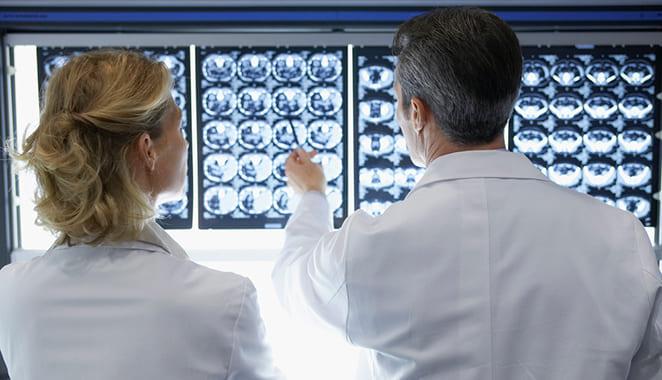 Descubren nuevo tipo de esclerosis múltiple (EM)