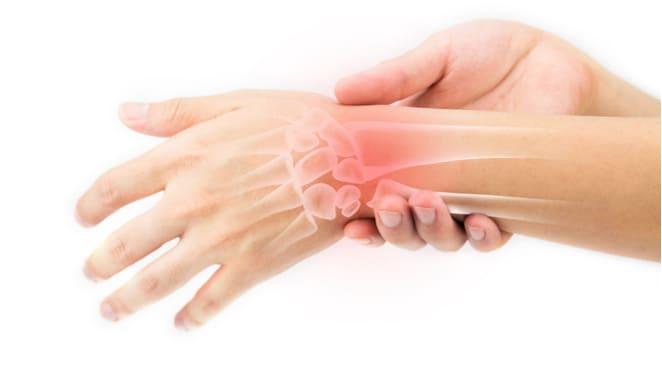 """La artritis debe ser """"visible"""""""