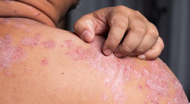 Consejos para pacientes con dermatitis atópica