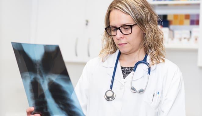 Manifestaciones pulmonares en artritis reumatoide