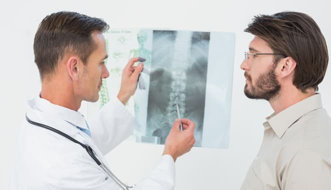 Osteoporosis en hombres