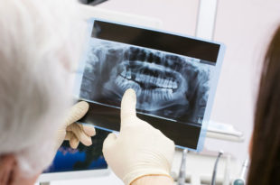 Los dientes pueden ser un detector de la osteoporosis