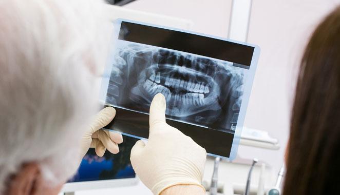 Los dientes podrían ser un detector de la osteoporosis