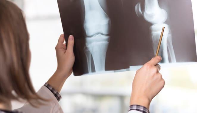 Artritis infecciosa: causas, síntomas y tratamiento