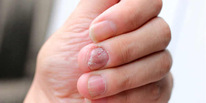 ¿Psoriasis en uñas
