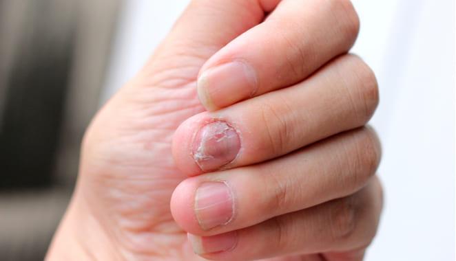 ¿Psoriasis en las uñas?