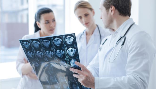 Células intestinales cortan la inflamación provocada por la esclerosis múltiple