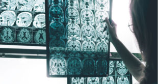 El consumo de colina podría ayudar a combatir el Alzheimer