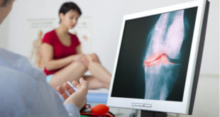 Terapia hormonal podría reducir la prevalencia de artrosis de rodilla