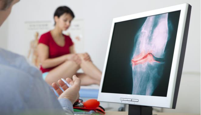 Terapia hormonal podría reducir la prevalencia de la artrosis de rodilla