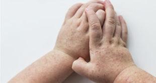 ¿Qué es la escarlatina y cuál es su relación con la fiebre reumática