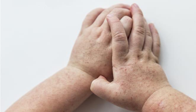 ¿Qué es la escarlatina y cuál es su relación con la fiebre reumática?