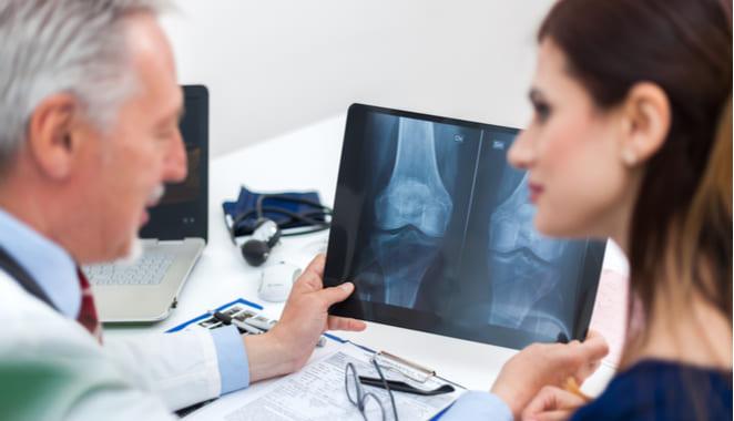 Osteoporosis podría iniciar desde el cerebro