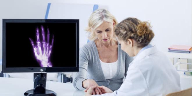 ¿Qué es la rizartrosis o artritis del pulgar?