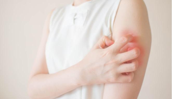 Vasculitis: relación con la hipertensión y la enfermedad renal
