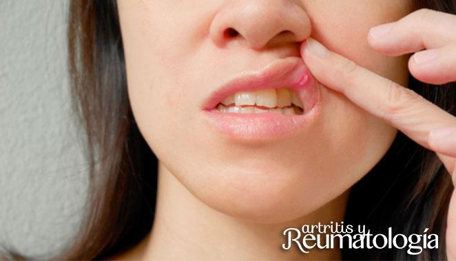 Aparición de llagas asociada con enfermedad de Crohn