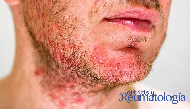 Dermatitis seborreica: cuando el estrés ataca tu piel