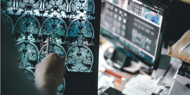 Inflamación crónica aumenta el riesgo de sufrir alzhéimer