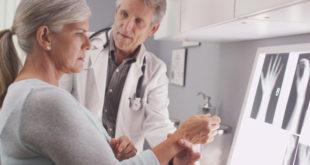 Psoriasis y su relación con la artritis