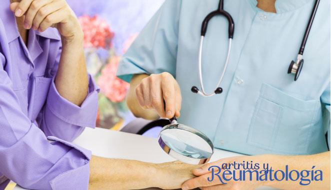¿Qué es el síndrome de Raynaud? Relación con enfermedades reumáticas