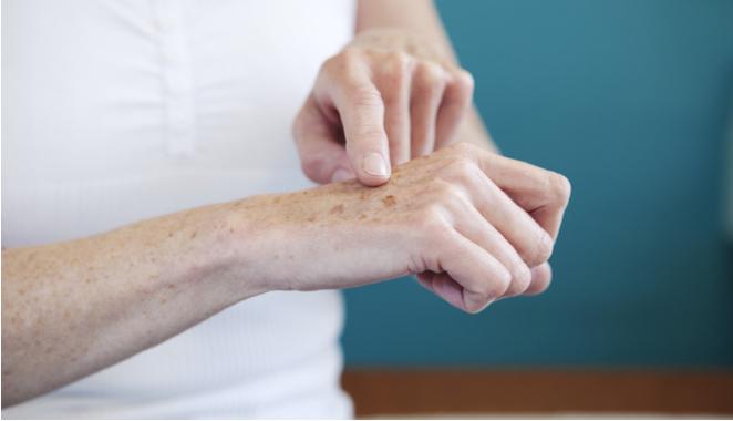 La supresión de proteína  podría corregir el aumento de la fibrosis en pacientes con esclerodermia