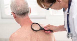 Poliangeítis microscópica: causas, síntomas y tratamiento