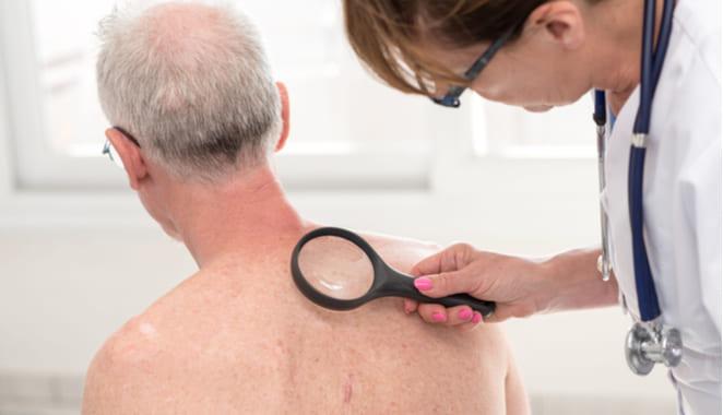 Vaculitis archivos | Revista Artritis y Reumatología