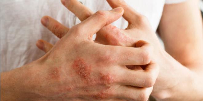 Dishidrosis, una enfermedad que puede ser confundida con la psoriasis