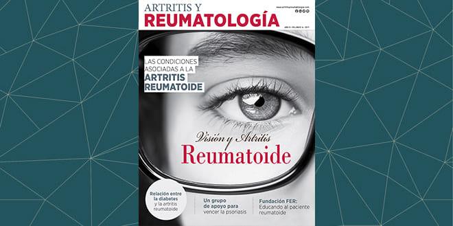 Visión y Artritis Reumatoide