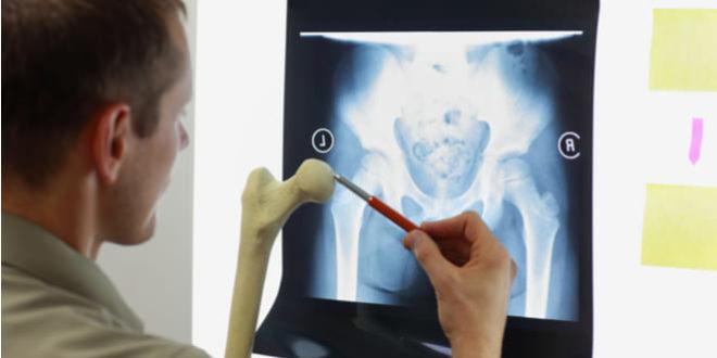 La osteoinmunología podría ayudar a pacientes con enfermedades reumáticas