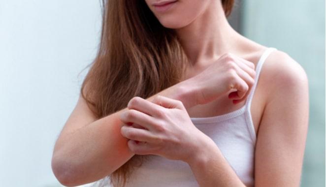 La psoriasis reduce la tasa de fertilidad en las mujeres