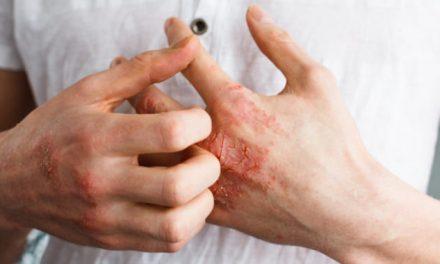 """""""Dermatología debería poder abordar la psoriasis con psicólogos"""""""