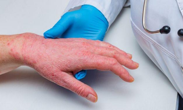 Síndrome de sapho: QUÉ ES, SÍNTOMAS, DIAGNÓSTICO Y TRATAMIENTO