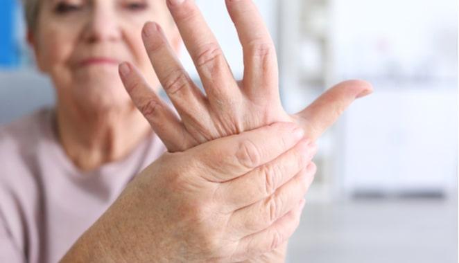 Diez consejos para personas con esclerodermia